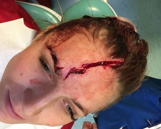 Liverpool goalkeeper compares to Harry Potter after cutting his forehead